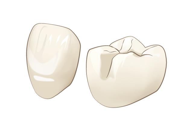 歯をキレイに美しくする施術