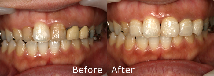 審美歯科施術例