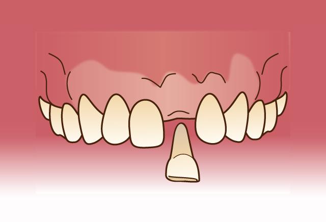 歯の移植(自家歯牙移植