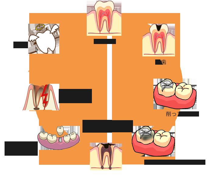 虫歯治療のサイクル