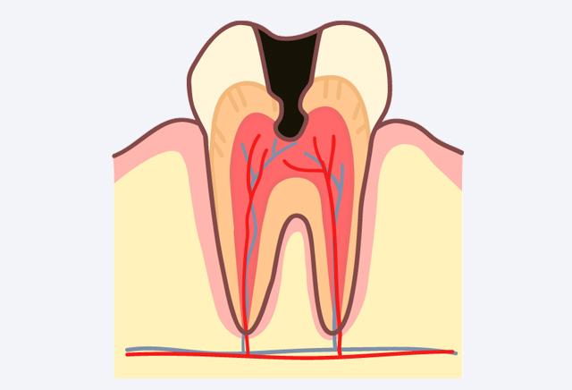 神経に虫歯が達しやすくなる